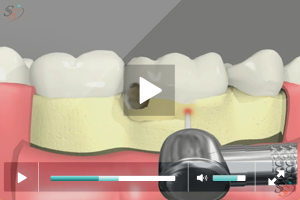 Crown Lengthening(With Laser Tool) - Scenario I