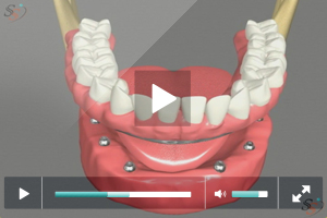 Fixed Implant Denture Option - Mandibular
