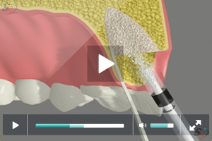 Implant Placement Following Bone Grafting