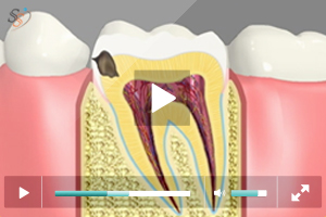 Tooth Colored Fillings - Class II