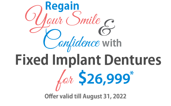 Fixed Implants Dentures Offer