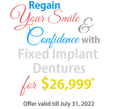 Fixed Implant Dentures Offer