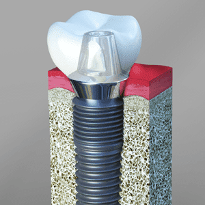 Dental Implants Palm Springs