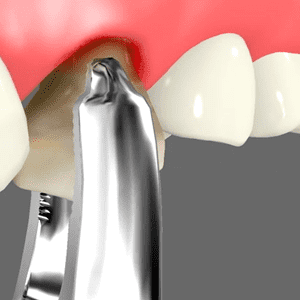 Oral Surgery Services in Palm Desert