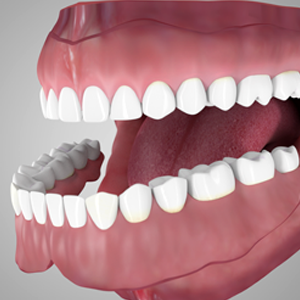 Overdentures Supported by Tooth Root in Rancho Mirage