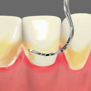 Periodontal Care Services in Palm Desert